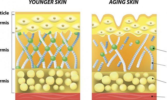 collagen-elasten-1